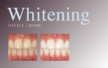 Whitening OFFICE / HOME